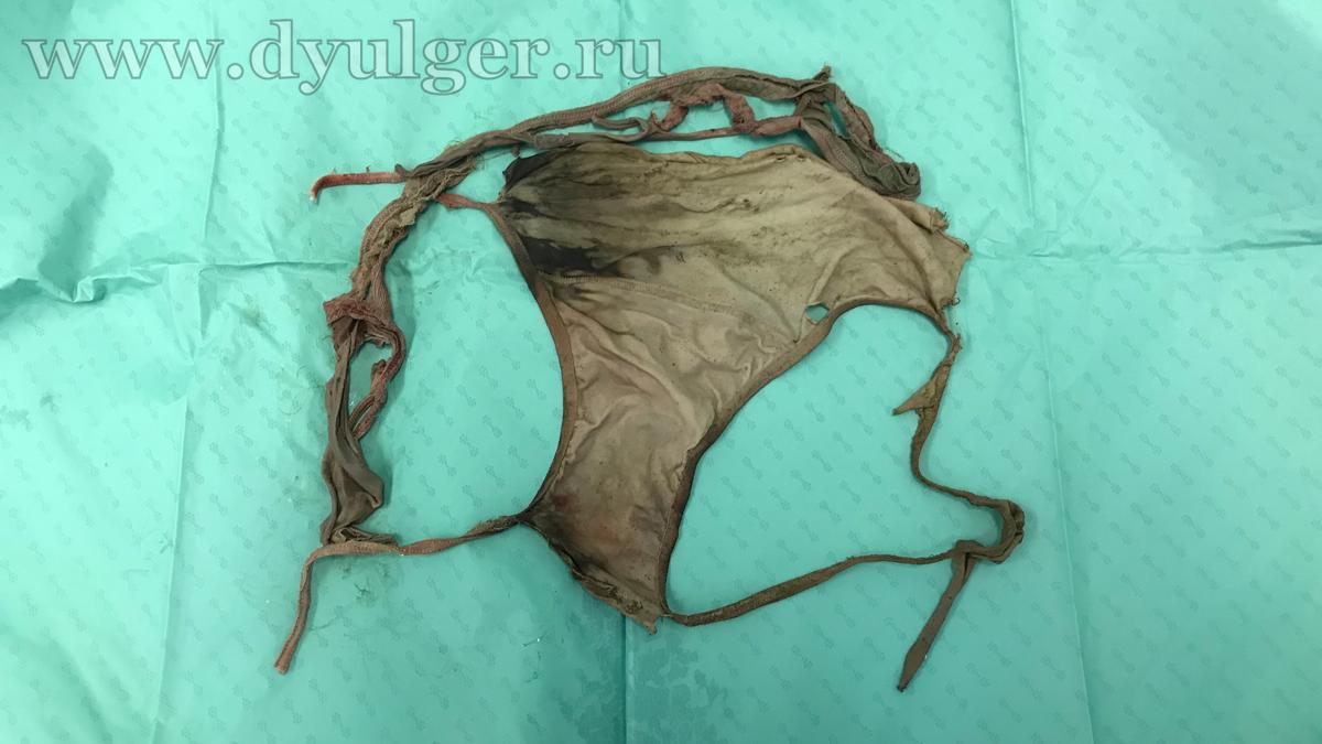 Инородное тело (трусы) извлеченное из ЖКТ у собаки.