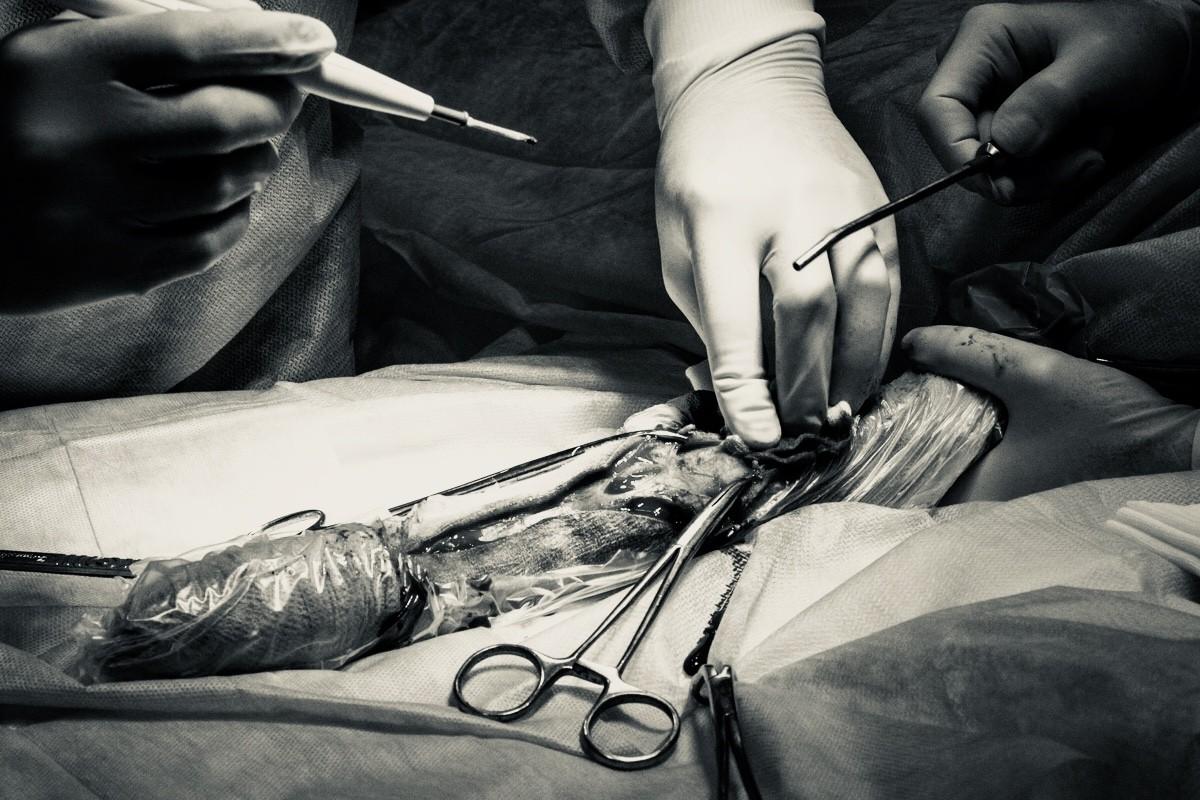 Остеосаркома операция