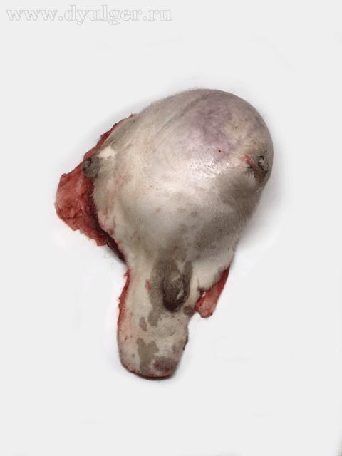Удаленная опухоль молочной железы