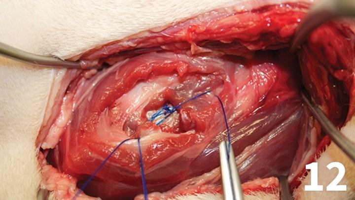 prop_laryngeal-surgery_figure-12-26026-gallery