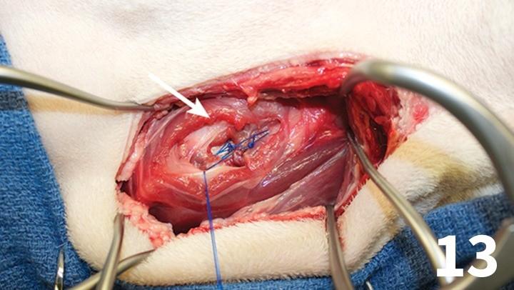 prop_laryngeal-surgery_figure-13-26026-gallery