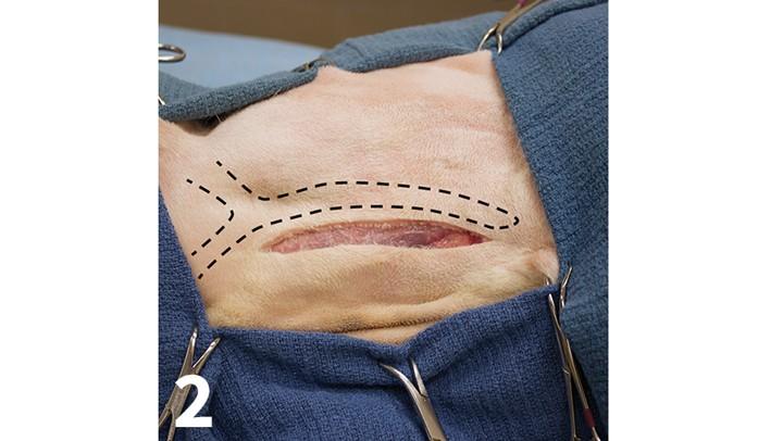 prop_laryngeal-surgery_figure-2-26026-gallery