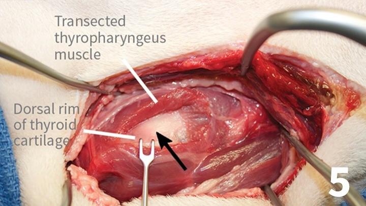 prop_laryngeal-surgery_figure-5-26026-gallery