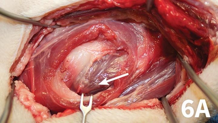 prop_laryngeal-surgery_figure-6a-26026-gallery