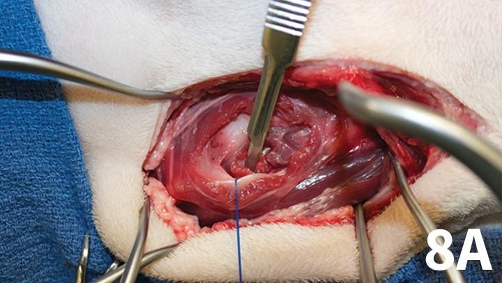 prop_laryngeal-surgery_figure-8a-26026-gallery