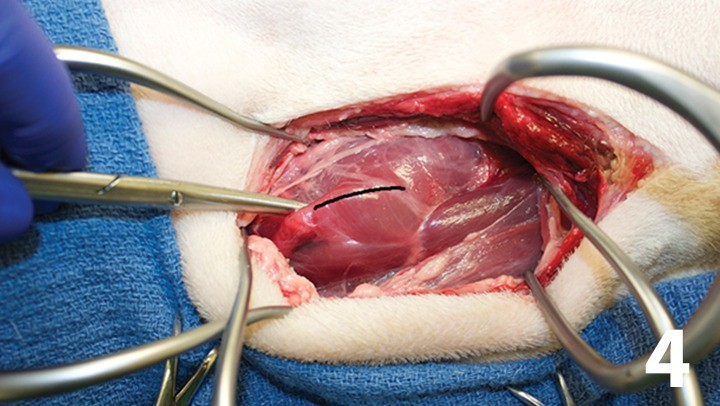 prop_layrngeal-surgery_figure-4-26026-gallery