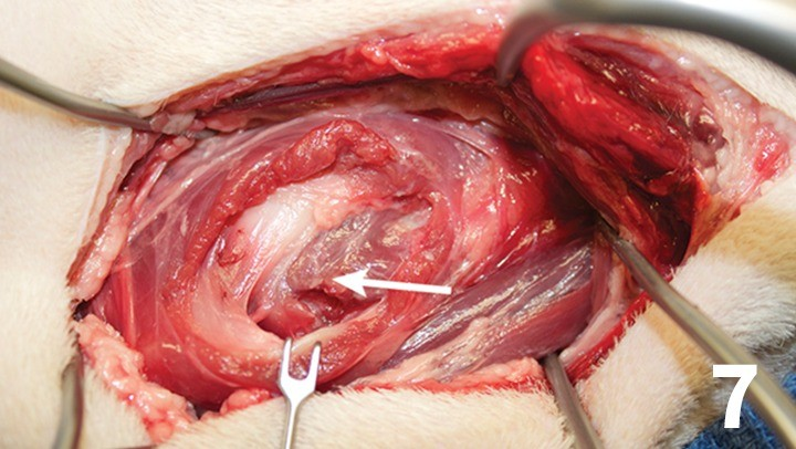 prop_layrngeal-surgery_figure-7-26026-gallery